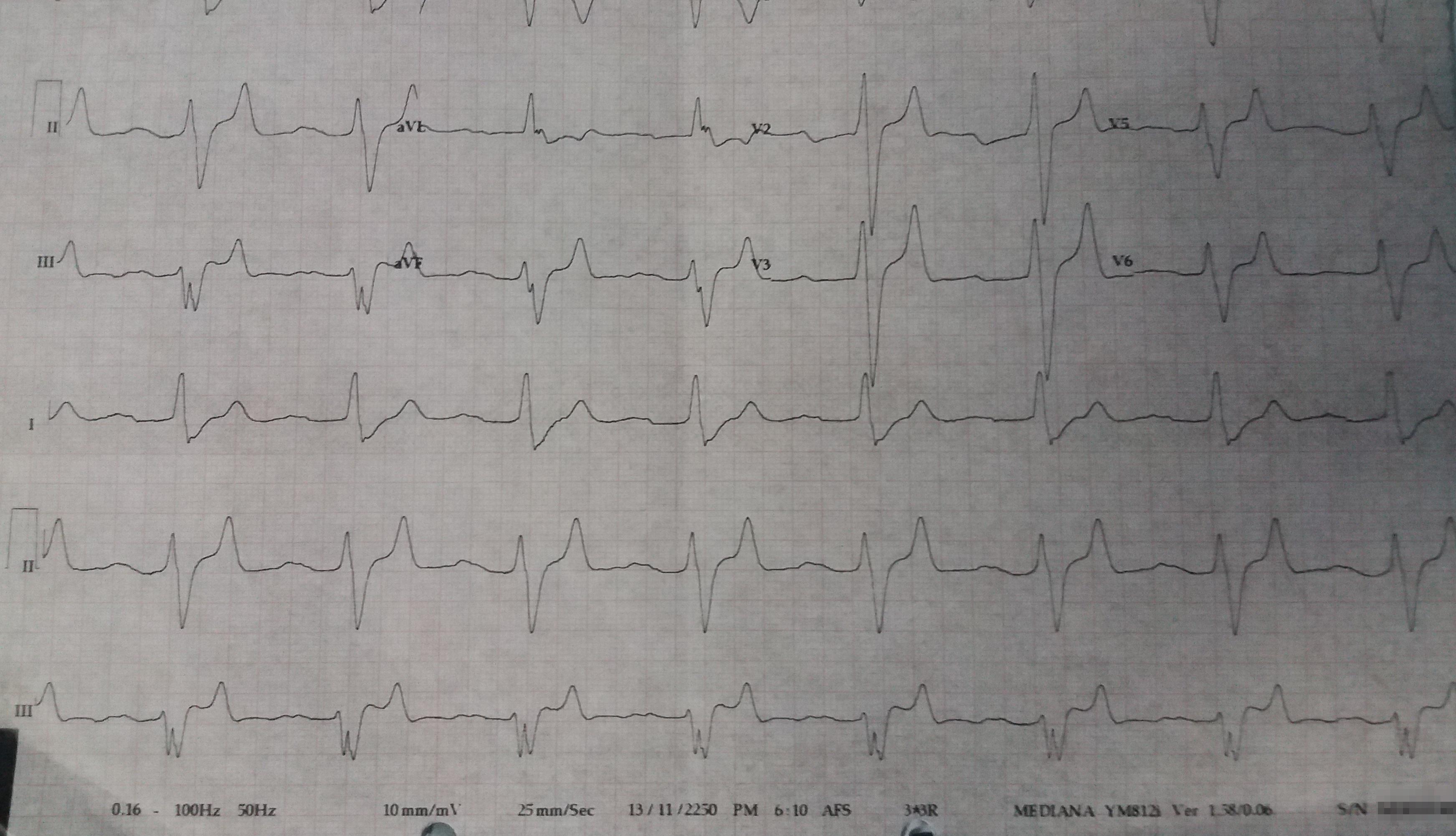 alt: Pre-Treatment ECG Data