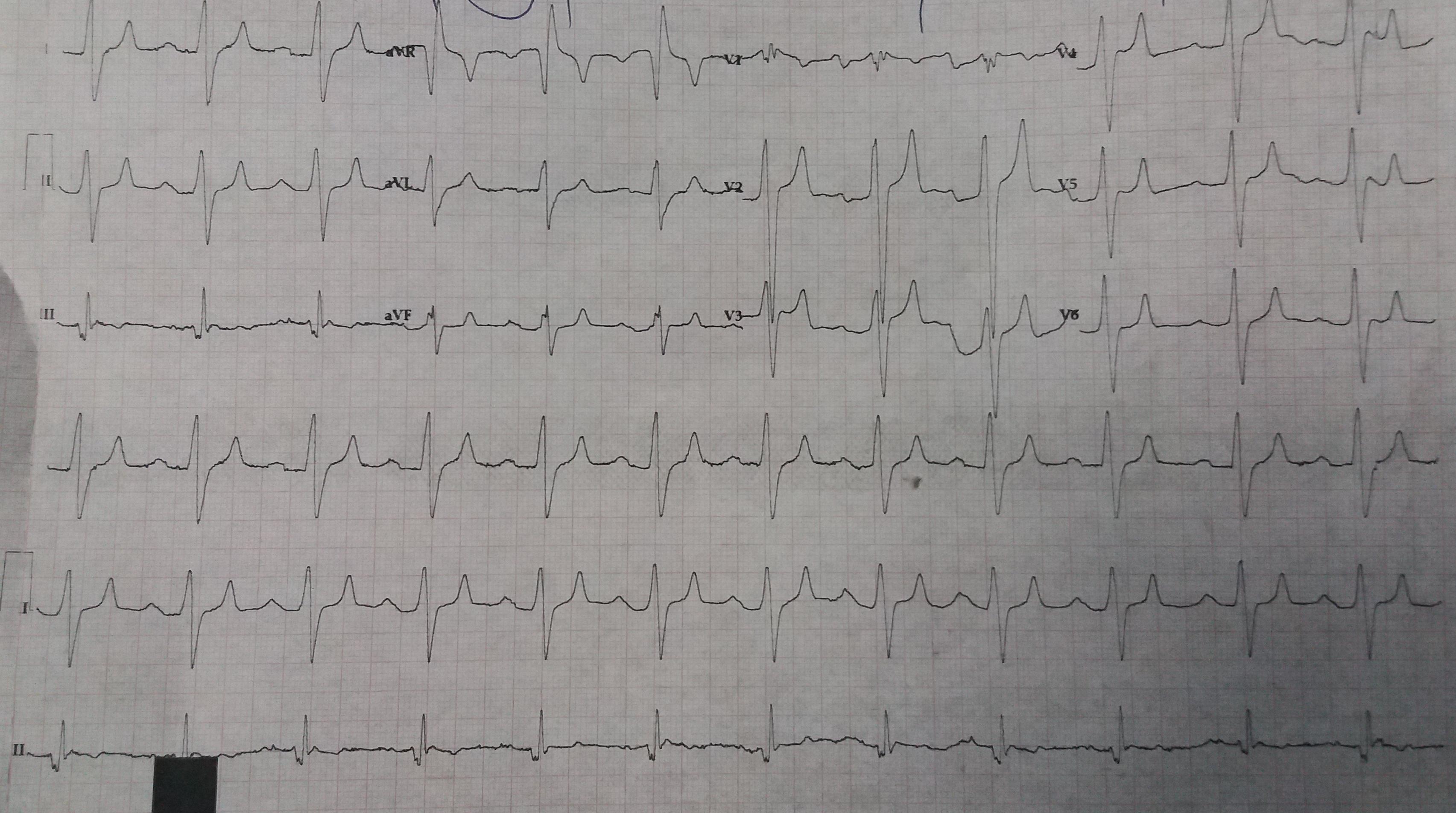alt: Post-Treatment ECG Data
