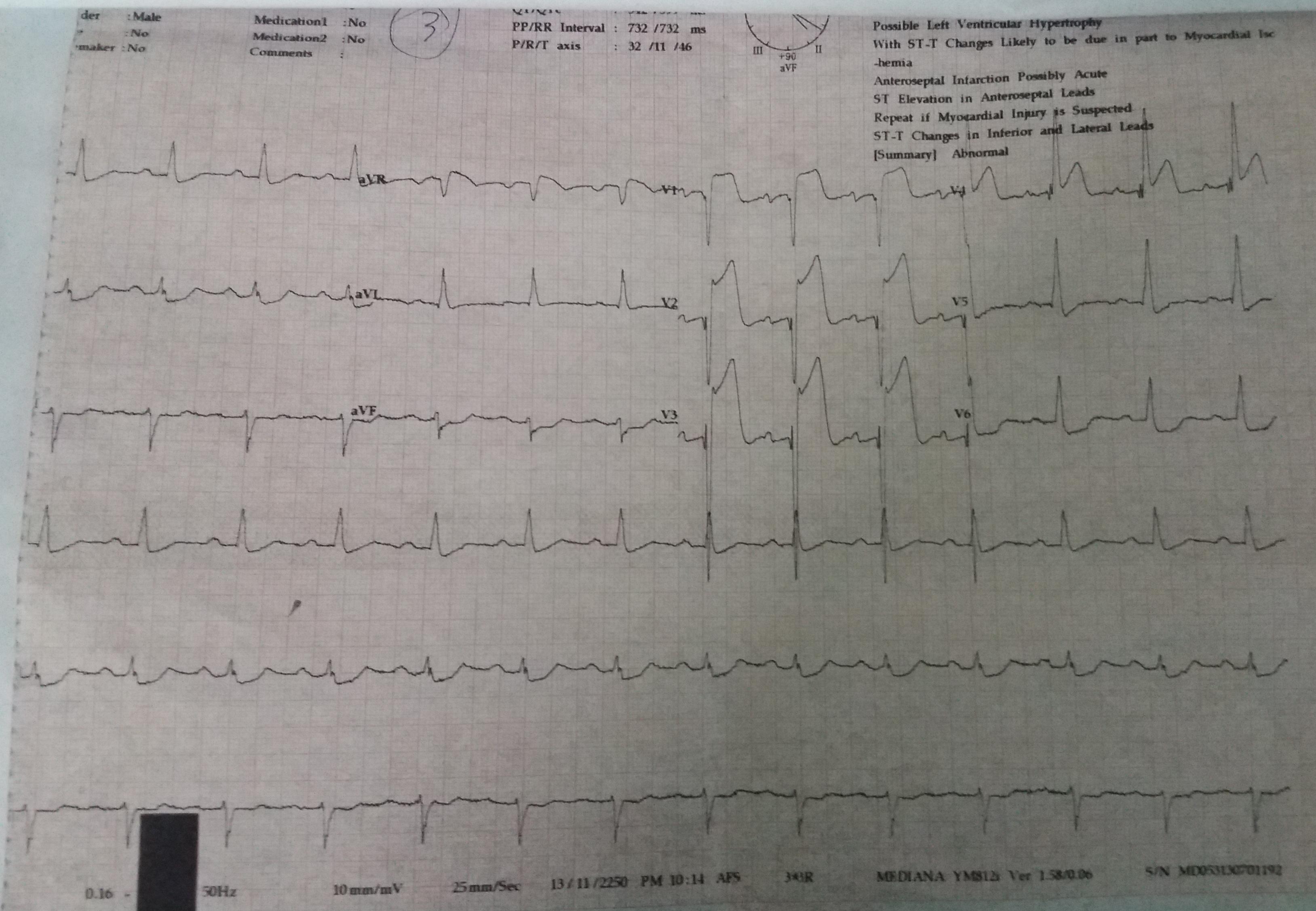 alt: ECG Data 3