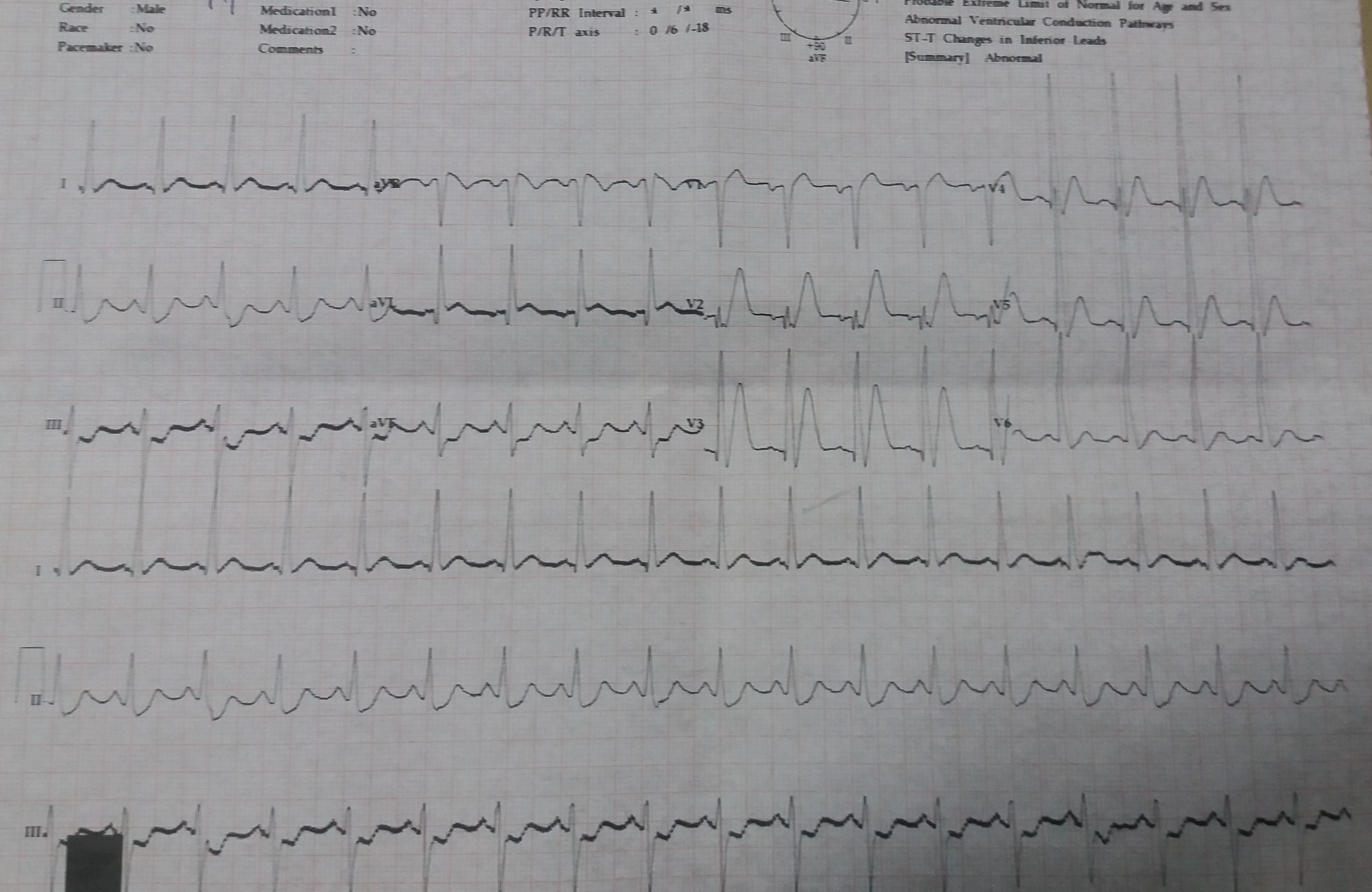 alt: ECG Data
