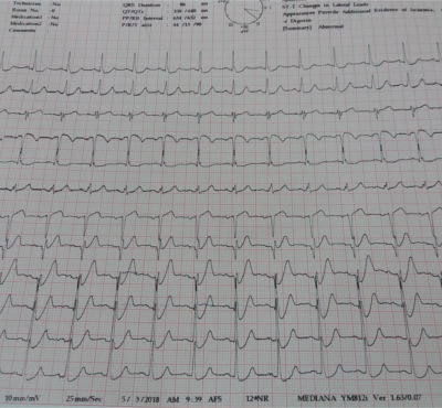 Patient ECG Data